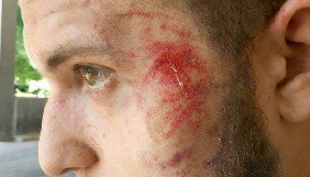 Поліція просить свідків повідомити інформацію про напад на журналіста «Громадського ТБ. Запоріжжя»
