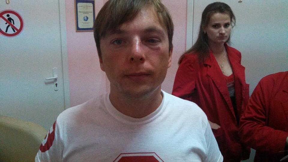 Журналіста «СтопКору» Медяника госпіталізовано через напад (ВІДЕО)