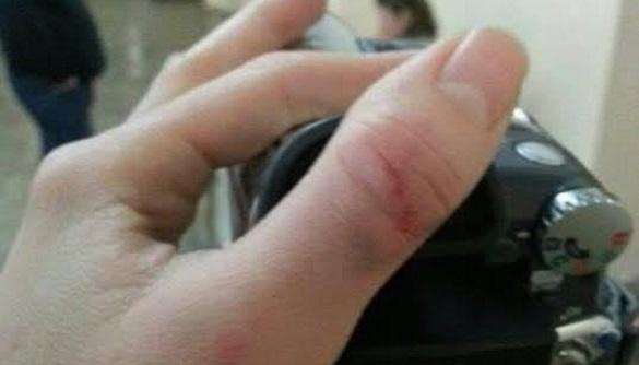 На Полтавщині під час концерту Козловського журналістці ТРК «Пирятин» забороняли зйомку та подряпали руку