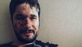 Крістофер Нанн планує видати книгу про Донбас та продовжить працювати в зоні АТО