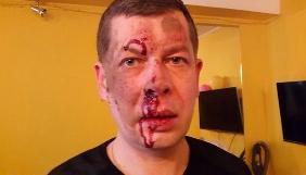 Редактор «Бердичева ділового», якого побили невідомі, називає напад актом залякування