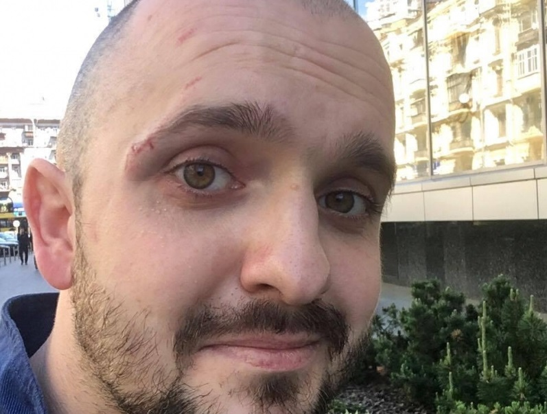 Гаврилюк розбив телефон і порвав сорочку нажурналістові