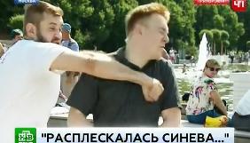 Журналіста російського  каналу НТВ у прямому ефірі побив нетверезий москвич
