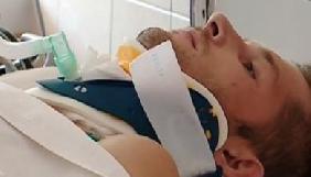 Пораненого оператора «Першого Криворізького» відключили від апарату штучної вентиляції легенів (ВІДЕО)