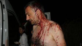 Жорстоко побитого журналіста Романа Варшанідзе з Одещини відвідав генсек Європейської федерації журналістів