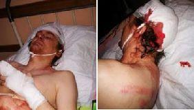 У Кривому Розі невідомі побили блогера та активіста Сергія Мокрякова