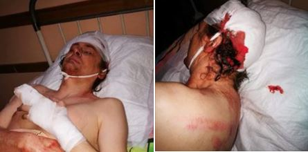 У Кривому Розі поліція відкрила кримінальне провадження через побиття активіста партії «Сила людей»