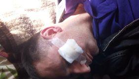 На території агропромислового підприємства Тернопільщини побили журналіста та оператора