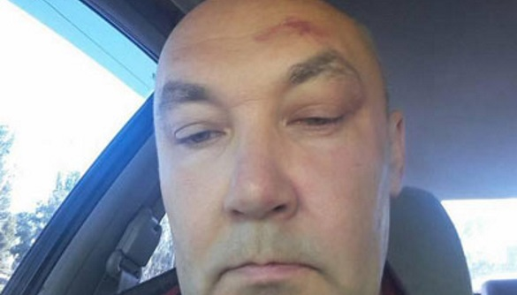 У Дніпрі відкрито провадження за фактом нападу на журналіста і активіста Всеволода Новохатька