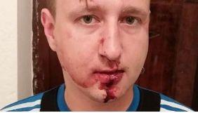 В Одесі троє невідомих напали на журналіста ТРК «Репортер» Костянтина Гречаного - поліція