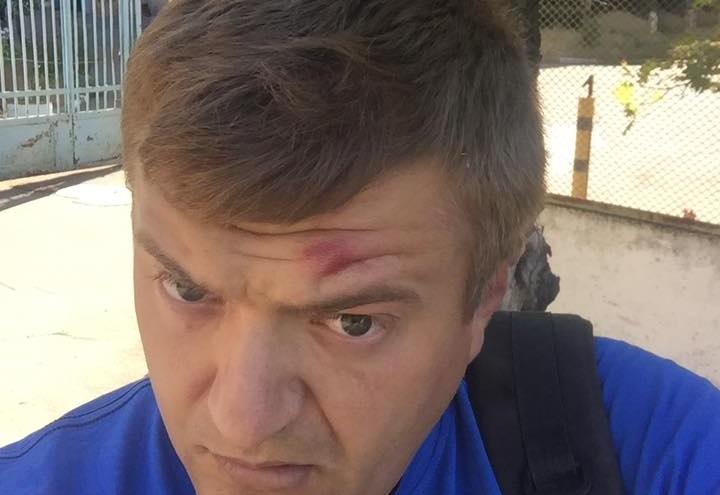 У Херсоні невідомі побили активіста і журналіста Сергія Нікітенка