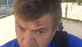Сергій Нікітенко впізнав у своїх нападниках тих, від кого постраждав одеський журналіст Віталій Устименко