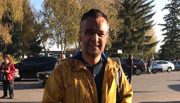 Поліція встановила осіб, які облили екс-журналіста Дмитра Гнапа нечистотами