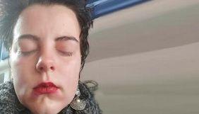 Журналістка журналу «Спільне» отримала опіки очей після нападу противників маршу пам'яті трансгендерів