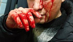 У Дніпропетровській області невідомі побили журналіста  газети «Лица»