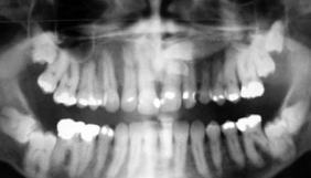 Проблема чутливості зубів
