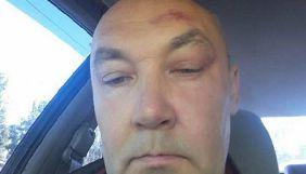 Журналіст Новохатько повідомив, що поліція вдруге закрила справу, пов'язану з нападом на нього