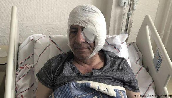 У Туреччині невідомі побили бейсбольними бітами журналіста, який критикував Ердогана