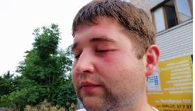 На Чернігівщині побили двох журналістів