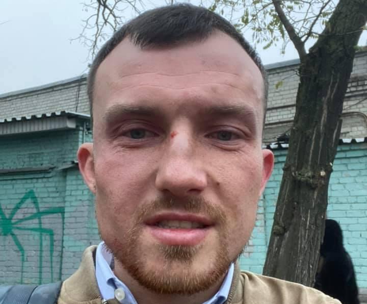 У Києві напали на головного експерта StateWatch та автора «Дзеркала тижня»