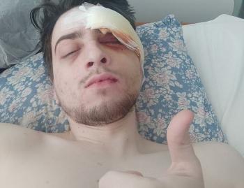Побитий журналіст Obozrevatel переніс кілька операцій
