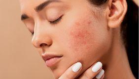 Коронавірус може призвести до довготривалих проблем зі шкірою — дослідження