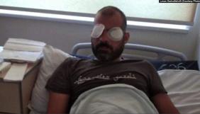 Оператор Суспільного мовника Грузії осліп на одне око після побиття під час ходи ЛГБТК(ІА+)-спільноти